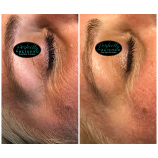 Before After Eye skin care