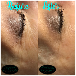 Before After Eye skincare